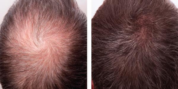 prp hair loss treatment14